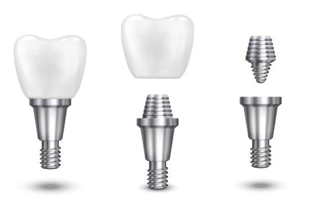 All on 4 in celovite rešitve, ki jih ponuja sodobno zobozdravstvo